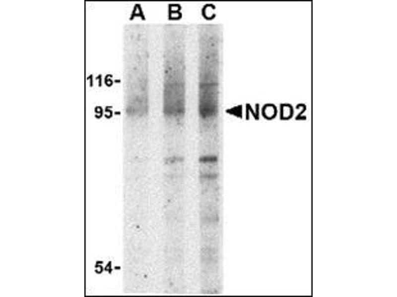 Western Blotting (WB) image for anti-Nucleotide-Binding Oligomerization Domain Containing 2 (NOD2) (N-Term) antibody (ABIN500363)