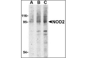 Image no. 2 for anti-Nucleotide-Binding Oligomerization Domain Containing 2 (NOD2) (N-Term) antibody (ABIN500363)