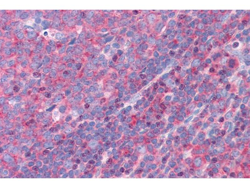 Image no. 1 for anti-Formin Binding Protein 1 (FNBP1) (Internal Region) antibody (ABIN185286)