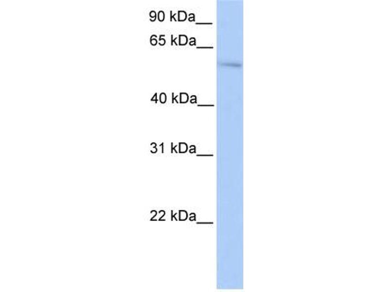 Western Blotting (WB) image for anti-Pleiomorphic Adenoma Gene 1 (PLAG1) (N-Term) antibody (ABIN2780443)