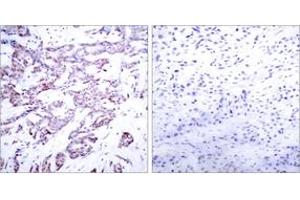 Immunohistochemistry (IHC) image for anti-Signal Transducer and Activator of Transcription 6, Interleukin-4 Induced (STAT6) (AA 612-661), (pThr645) antibody (ABIN1531979)