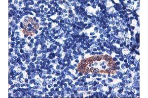 Image no. 3 for anti-LIM and Cysteine-Rich Domains 1 (LMCD1) antibody (ABIN2724853)