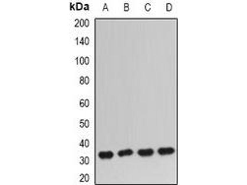 Western Blotting (WB) image for anti-IGFBP5 antibody (Insulin-Like Growth Factor Binding Protein 5) (ABIN3198151)