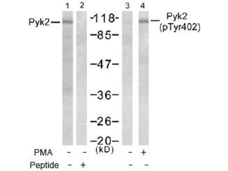 Western Blotting (WB) image for anti-PTK2B Protein tyrosine Kinase 2 beta (PTK2B) (pTyr402) antibody (ABIN257536)