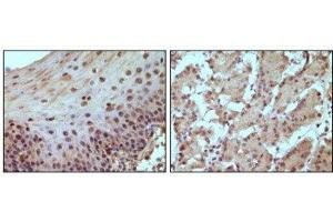 Immunohistochemistry (Paraffin-embedded Sections) (IHC (p)) image for anti-Retinoblastoma 1 抗体 (RB1) (ABIN4349480)