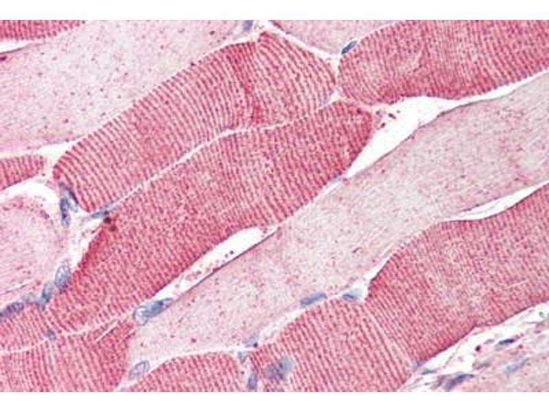 Immunohistochemistry (Paraffin-embedded Sections) (IHC (p)) image for anti-Arylsulfatase B (ARSB) (AA 359-372) antibody (ABIN337028)