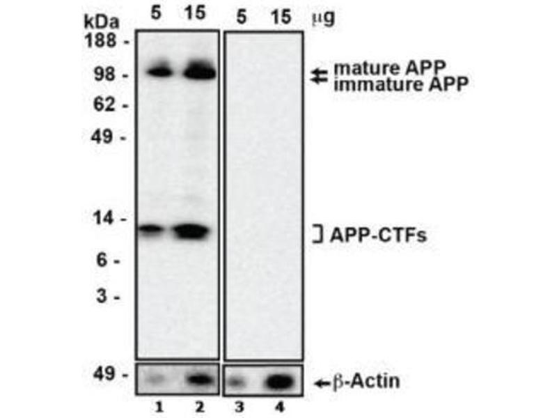 Western Blotting (WB) image for anti-Amyloid beta (Abeta) antibody (ABIN4284085)