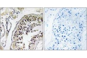 Image no. 2 for anti-CCR4-NOT Transcription Complex Subunit 4 (CNOT4) (AA 61-110) antibody (ABIN1534740)