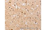 Immunohistochemistry (IHC) image for anti-Phosphatidylinositol-4-Phosphate 5-Kinase, Type I, alpha (PIP5K1A) antibody (ABIN2429435)