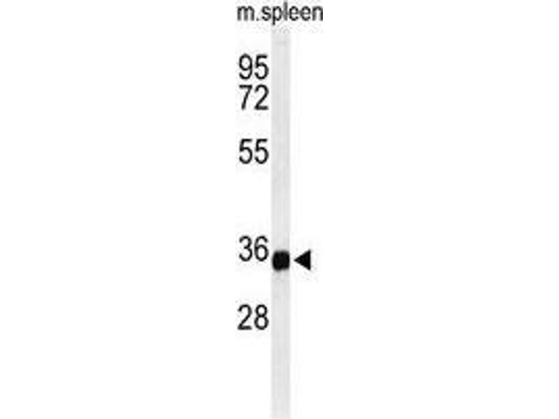 Western Blotting (WB) image for anti-Transmembrane Protein 173 (TMEM173) (AA 318-348), (C-Term) antibody (ABIN955254)