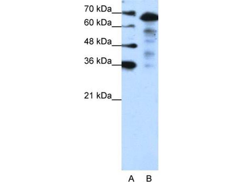 Western Blotting (WB) image for anti-MLX Interacting Protein-Like (MLXIPL) (N-Term) antibody (ABIN183834)