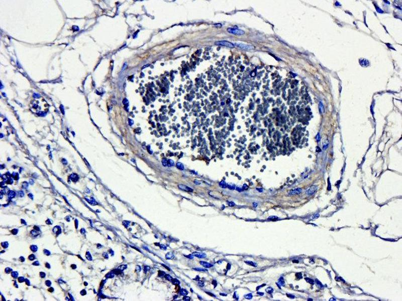 Immunohistochemistry (Paraffin-embedded Sections) (IHC (p)) image for anti-CD4 antibody (CD4 Molecule) (ABIN2506709)