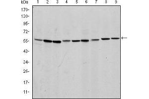 Western Blotting (WB) image for anti-AIFM1 antibody (Apoptosis-Inducing Factor, Mitochondrion-Associated, 1) (ABIN968950)