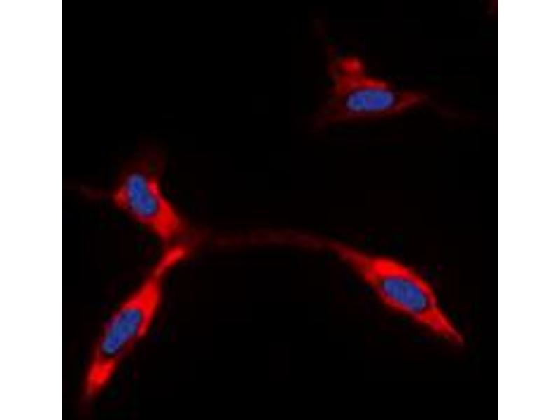 Immunofluorescence (IF) image for anti-Potassium Inwardly-Rectifying Channel, Subfamily J, Member 11 (KCNJ11) (Center) antibody (ABIN2971605)