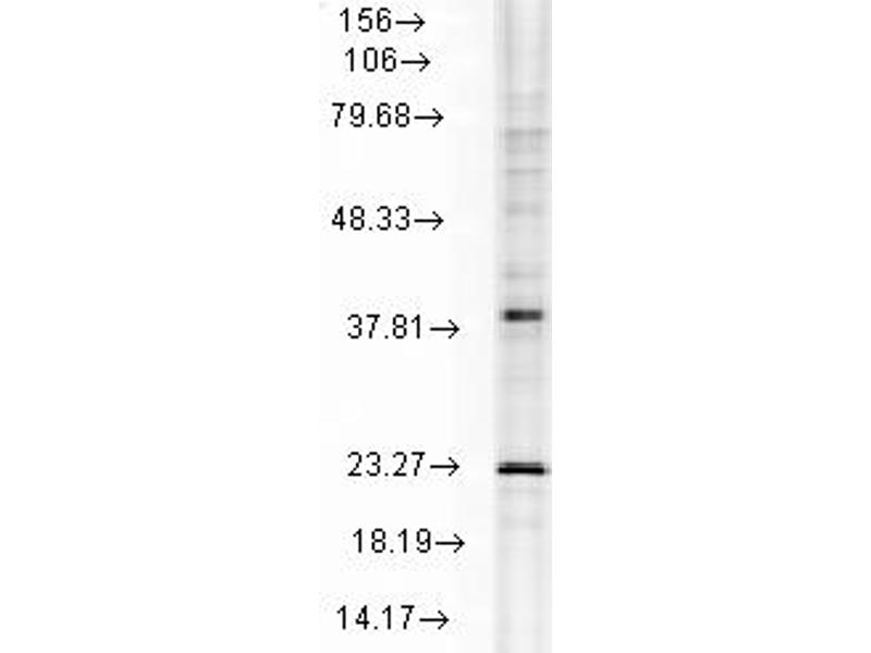 Western Blotting (WB) image for anti-Heat Shock 22kDa Protein 8 (HSPB8) antibody (ABIN863103)