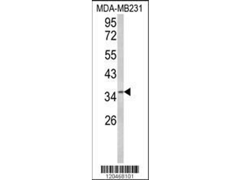 Western Blotting (WB) image for anti-BRISC and BRCA1 A Complex Member 1 (BABAM1) (AA 116-143), (Center) antibody (ABIN652514)
