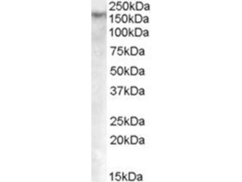 image for anti-DNA (Cytosine-5)-Methyltransferase 1 (DNMT1) (Internal Region) antibody (ABIN783010)