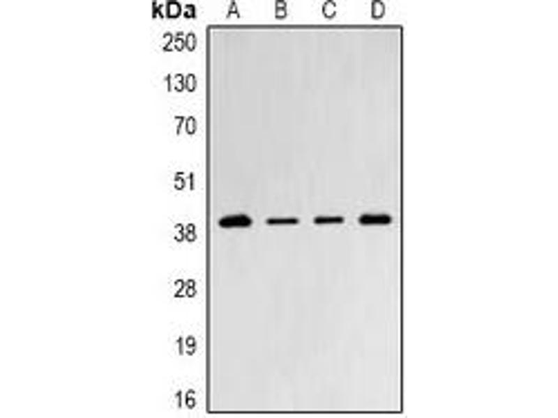 Western Blotting (WB) image for anti-Proteasome (Prosome, Macropain) 26S Subunit, Non-ATPase, 8 (PSMD8) antibody (ABIN2966954)