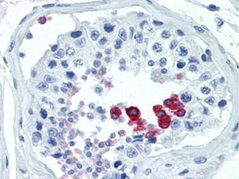 Immunohistochemistry (Paraffin-embedded Sections) (IHC (p)) image for anti-Cyclin D1 (CCND1) (Ser90) antibody (ABIN5611456)