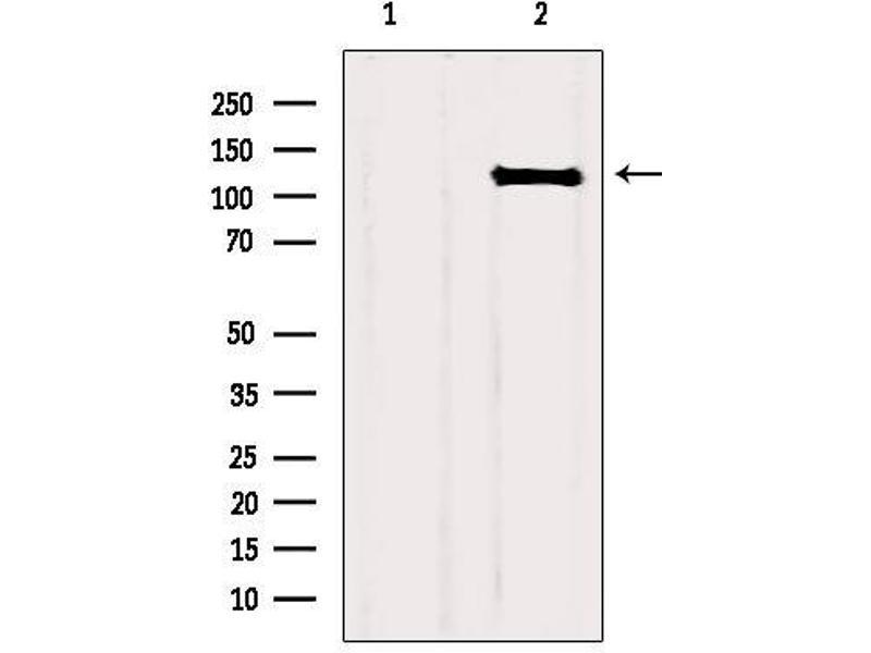 Western Blotting (WB) image for anti-Fibroblast Growth Factor Receptor 1 (FGFR1) antibody (ABIN6261731)