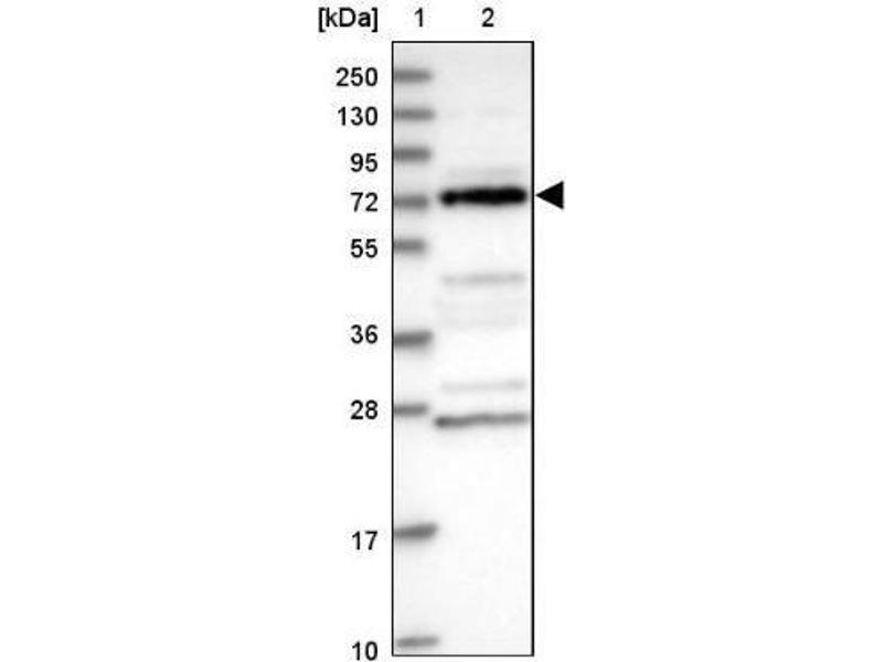 Western Blotting (WB) image for anti-Dihydrouridine Synthase 3-Like (S. Cerevisiae) (DUS3L) antibody (ABIN4306381)