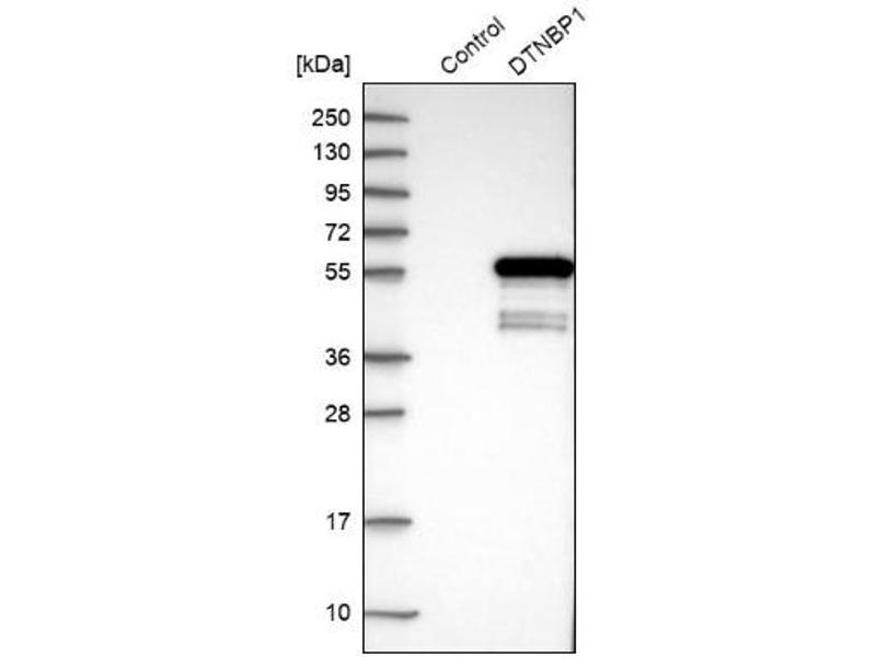 Western Blotting (WB) image for anti-Dystrobrevin Binding Protein 1 (DTNBP1) antibody (ABIN4306530)