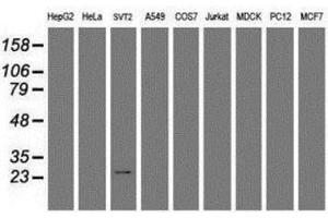 Image no. 1 for anti-Regulator of G-Protein Signaling 16 (RGS16) antibody (ABIN4350332)