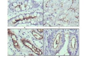 Immunohistochemistry (IHC) image for anti-WNT10B antibody (Wingless-Type MMTV Integration Site Family, Member 10B) (ABIN1109512)