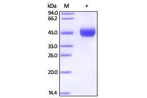 SDS-PAGE (SDS) image for Protein L (Active) protein (Biotin,His tag) (ABIN2444210)