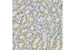 Immunohistochemistry (Paraffin-embedded Sections) (IHC (p)) image for anti-Adaptor-Related Protein Complex 2, alpha 1 Subunit (AP2A1) antibody (ABIN6136952)