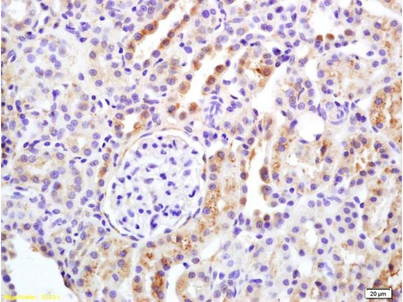 Immunohistochemistry (IHC) image for anti-APAF1 antibody (Apoptotic Peptidase Activating Factor 1) (AA 1200-1248) (ABIN724295)