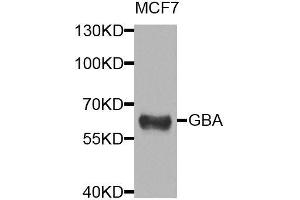 Image no. 1 for anti-Glucosidase, Beta, Acid (GBA) antibody (ABIN6140986)