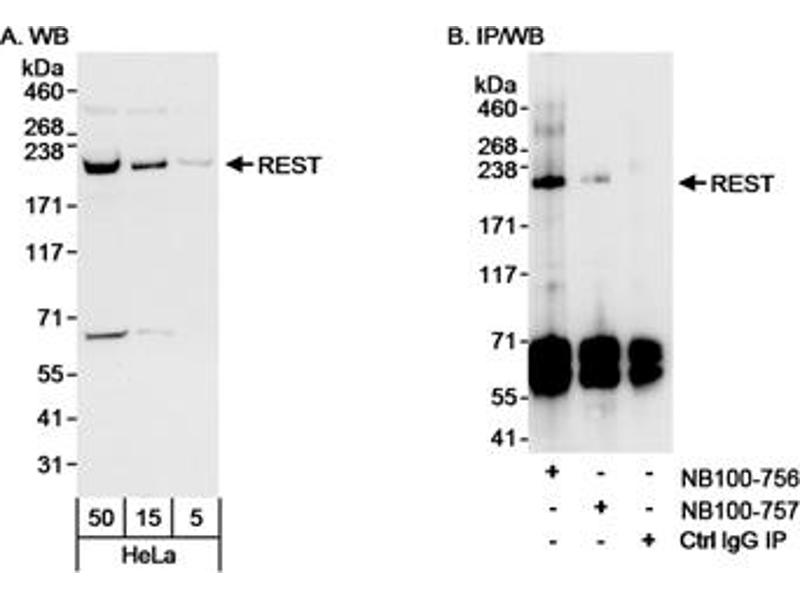 Western Blotting (WB) image for anti-RE1-Silencing Transcription Factor (REST) (AA 800-850) antibody (ABIN152175)