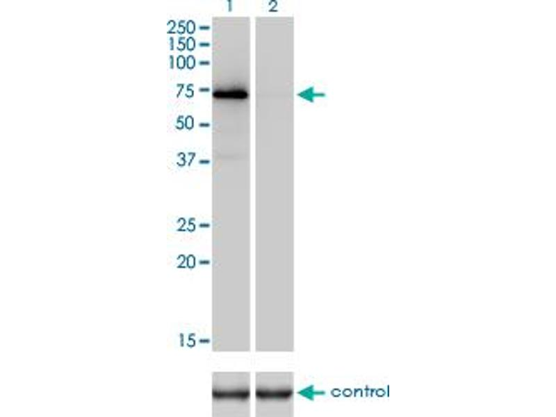 Western Blotting (WB) image for anti-Prothrombin antibody (Coagulation Factor II (thrombin)) (AA 263-362) (ABIN560822)