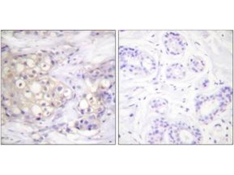 Immunohistochemistry (IHC) image for anti-Protein Kinase C, alpha (PKCa) (AA 606-655), (pThr638) antibody (ABIN1531462)