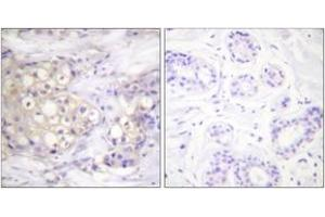 Immunohistochemistry (IHC) image for anti-PKC alpha antibody (Protein Kinase C, alpha) (pThr638) (ABIN1531462)