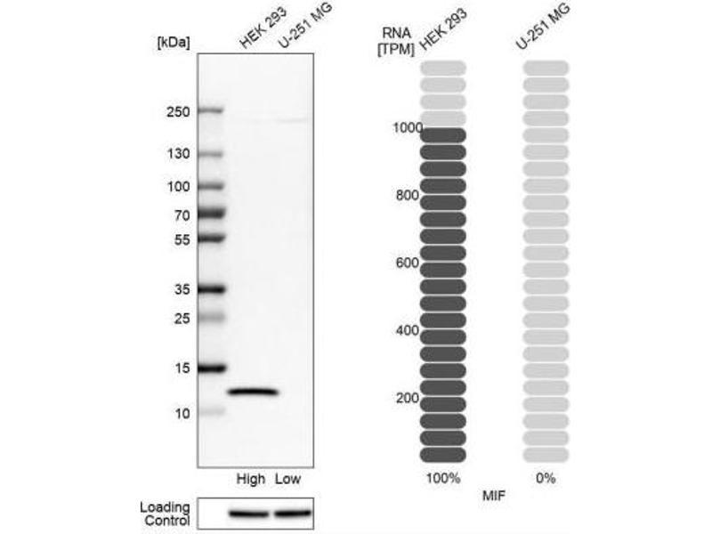 Western Blotting (WB) image for anti-Macrophage Migration Inhibitory Factor (Glycosylation-Inhibiting Factor) (MIF) antibody (ABIN4334481)