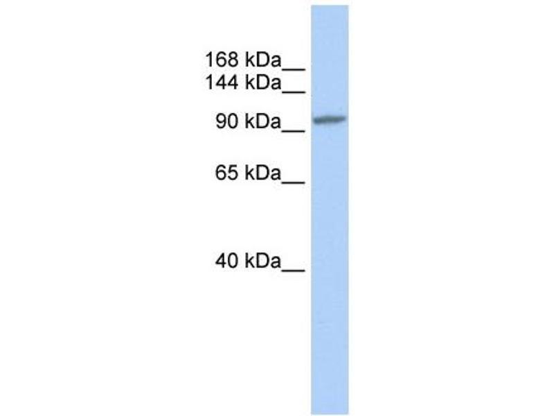 Western Blotting (WB) image for anti-Nuclear Factor of Activated T-Cells, Cytoplasmic, Calcineurin-Dependent 3 (NFATC3) (N-Term) antibody (ABIN2792685)