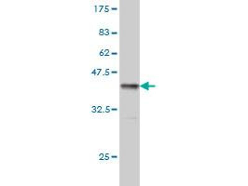 Western Blotting (WB) image for anti-Tripeptidyl Peptidase I (TPP1) (AA 195-305) antibody (ABIN393313)