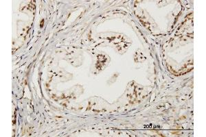 Image no. 3 for anti-LIM Domain Only 4 (LMO4) (AA 1-165) antibody (ABIN521987)