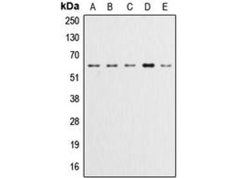 Western Blotting (WB) image for anti-AKT antibody (V-Akt Murine Thymoma Viral Oncogene Homolog 1) (pTyr315) (ABIN2705426)