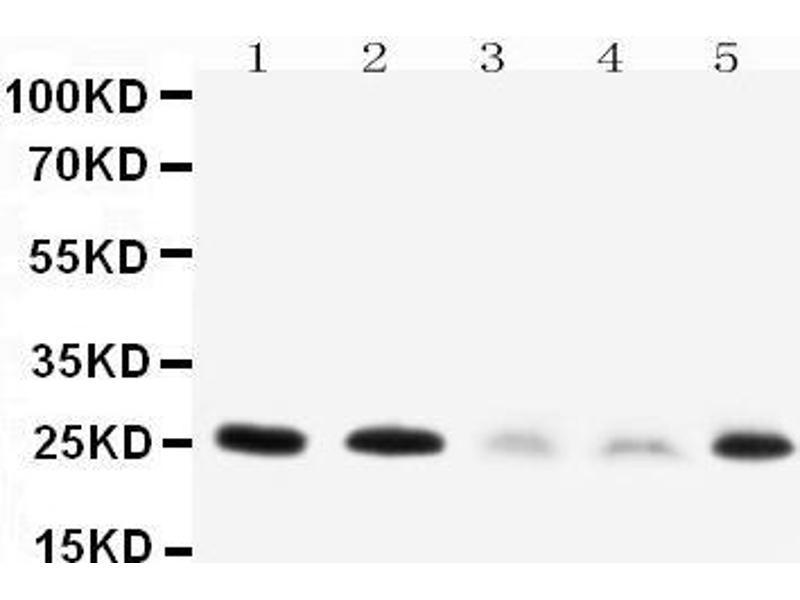 Western Blotting (WB) image for anti-Pleiotrophin (PTN) (AA 150-168), (C-Term) antibody (ABIN3044398)