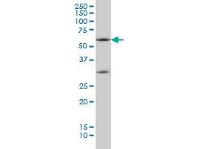 Western Blotting (WB) image for anti-SOCS5 antibody (Suppressor of Cytokine Signaling 5) (AA 1-110) (ABIN564173)