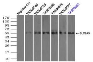 Image no. 3 for anti-Solute Carrier Family 2 (Facilitated Glucose/fructose Transporter), Member 5 (SLC2A5) antibody (ABIN1498472)