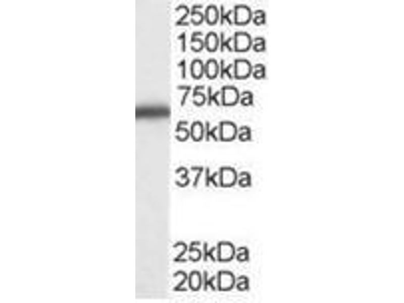 Image no. 1 for anti-DEAD (Asp-Glu-Ala-Asp) Box Polypeptide 5 (DDX5) (C-Term) antibody (ABIN374414)
