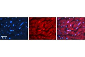 Image no. 4 for anti-Valosin Containing Protein (VCP) (C-Term) antibody (ABIN2788042)
