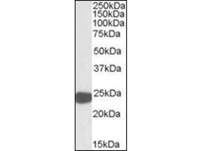 Western Blotting (WB) image for anti-Peroxiredoxin 1 antibody (PRDX1) (Internal Region) (ABIN615447)