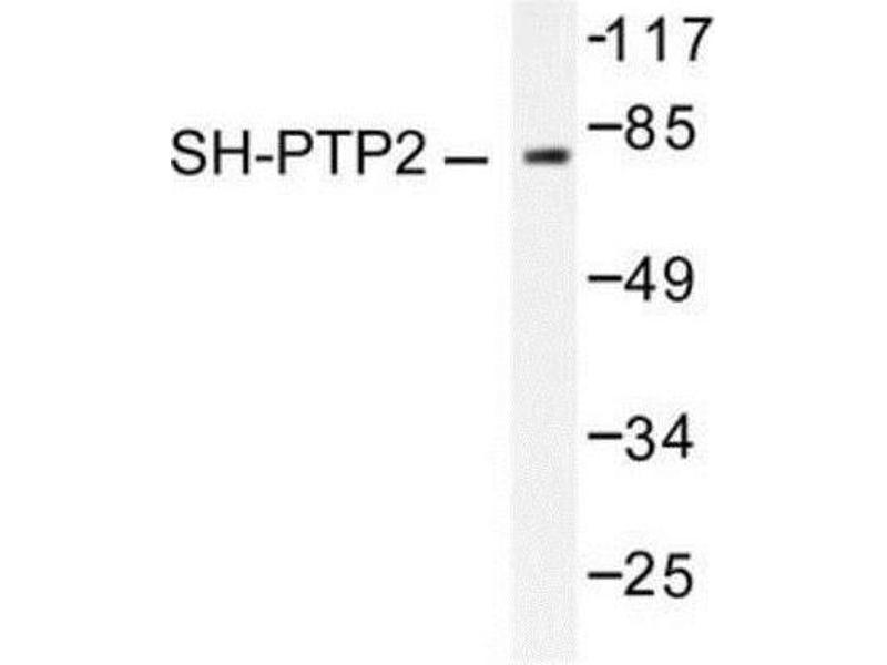 Western Blotting (WB) image for anti-Protein tyrosine Phosphatase, Non-Receptor Type 11 (PTPN11) antibody (ABIN407823)