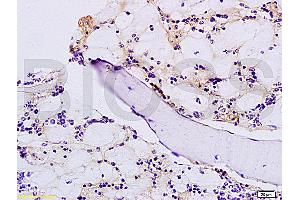 Immunohistochemistry (IHC) image for anti-FGF23 Antikörper (Fibroblast Growth Factor 23) (AA 25-75) (ABIN714461)