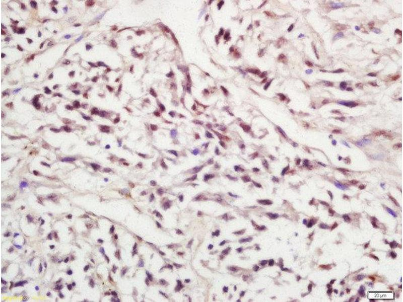 Immunohistochemistry (Paraffin-embedded Sections) (IHC (p)) image for anti-SIRT1 antibody (Sirtuin 1) (AA 20-60) (ABIN745658)